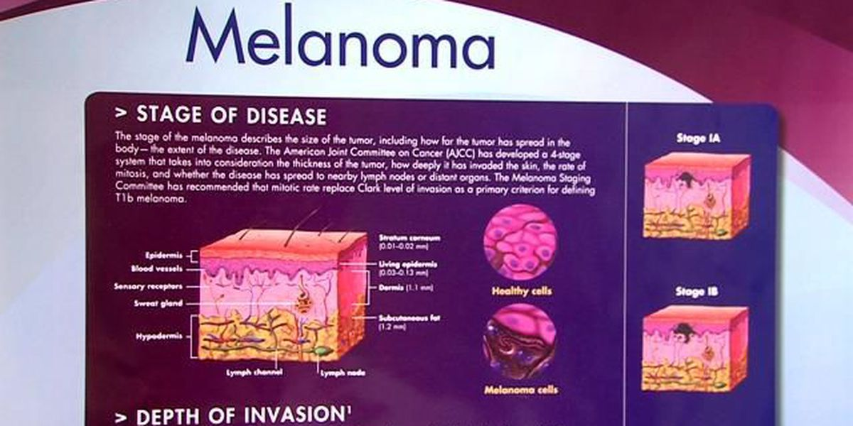 Doctors treat more melanoma patents in the Panhandle than rest of the state