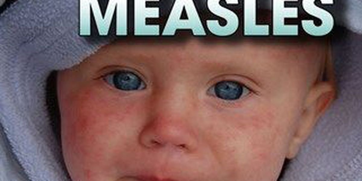 Spike in measles cases in the U.S.
